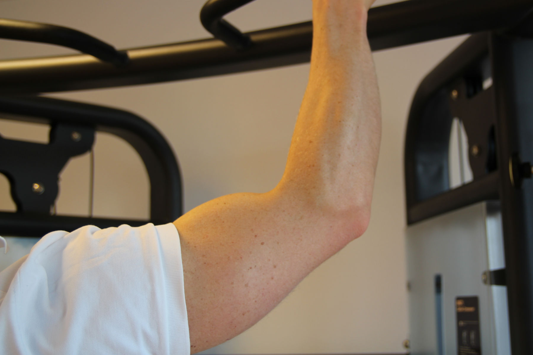 Fokusklinikken behandler irriterte slimposer i arm.