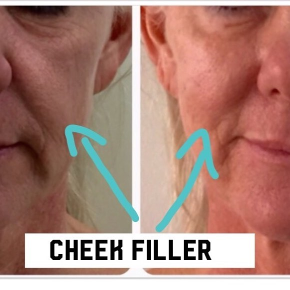 What a difference some cheek filler makes #cheekfillers #fillerinjections #highcheekbones