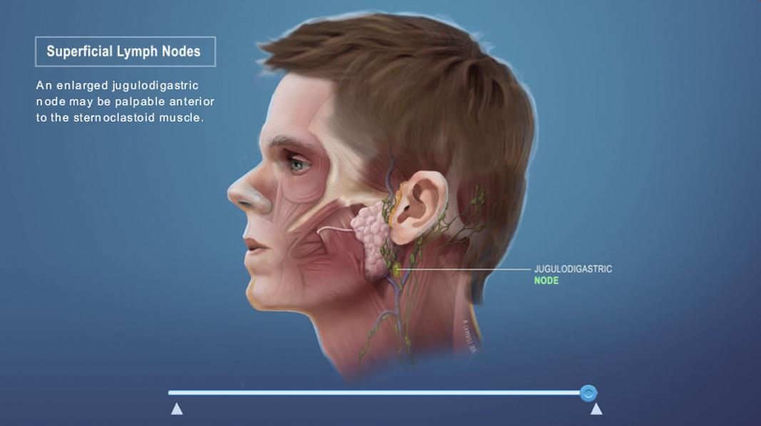 Medical_Interactive_lymph_nodes_v02.jpg