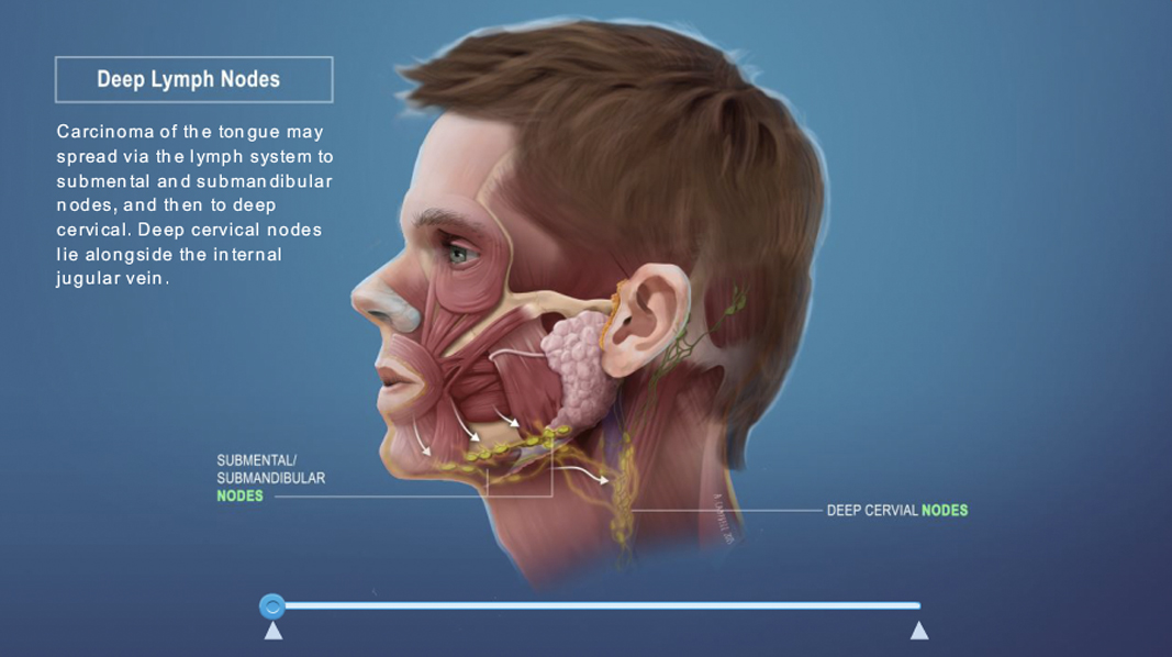 Medical_Interactive_lymph_nodes_v01.jpg