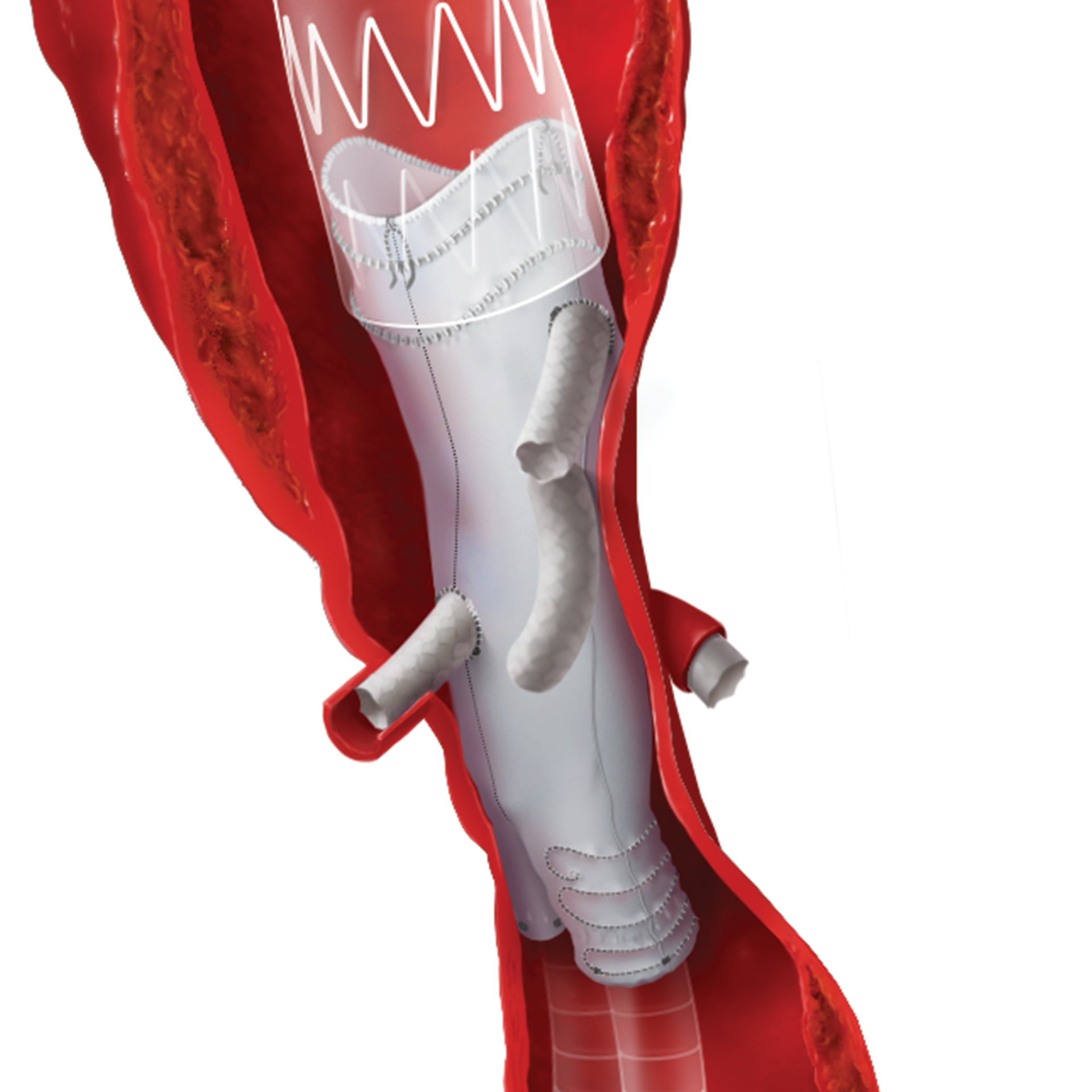 annie_camobell_medical_illustration_aneurysm_06.png