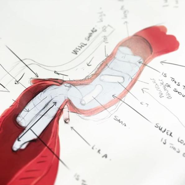 Campbell-Medical-Illustration-Work-in-progress-02.png