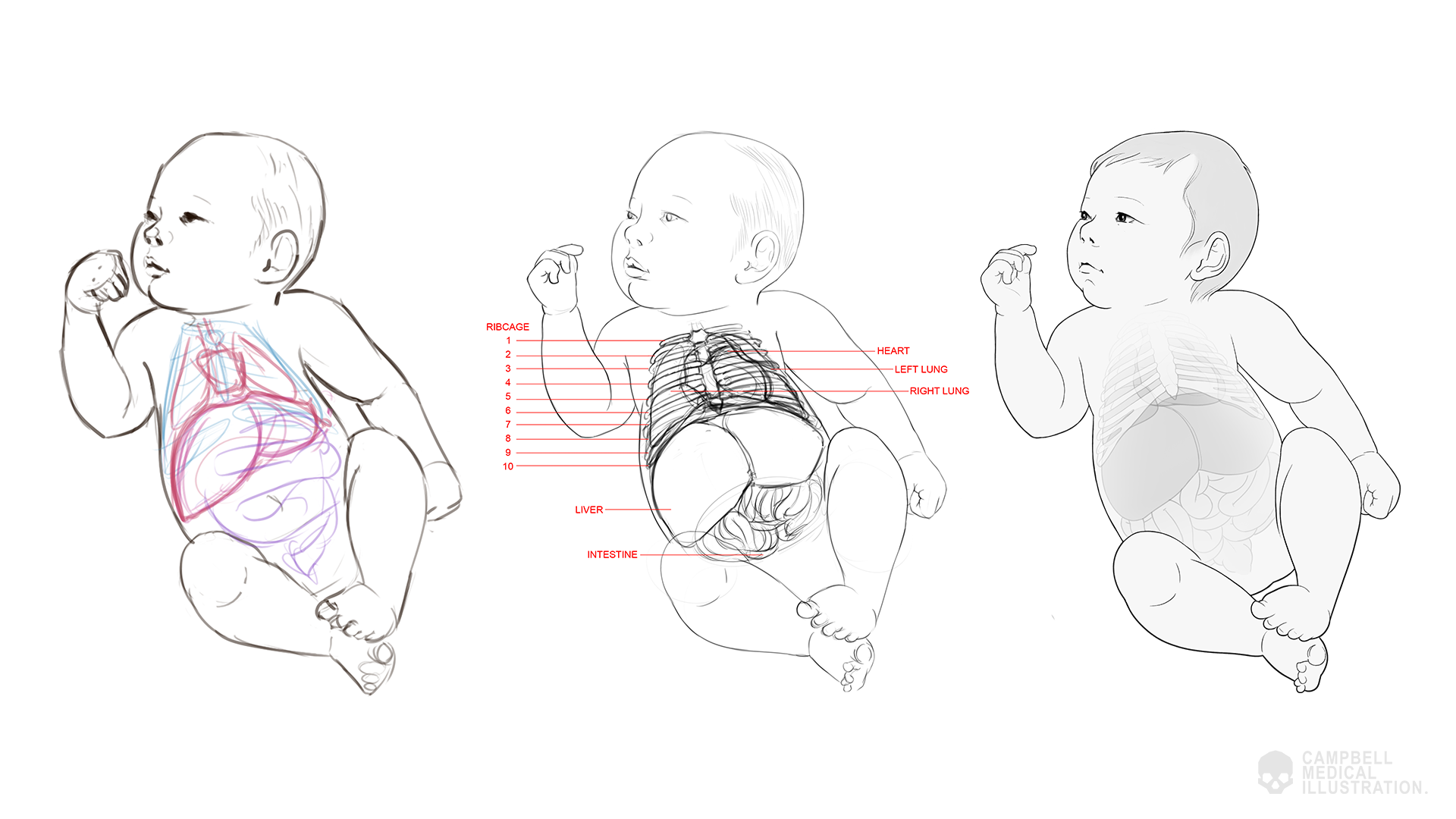 Susanna-Brighouse-Baby-medical-illustration-work-in-progress.png