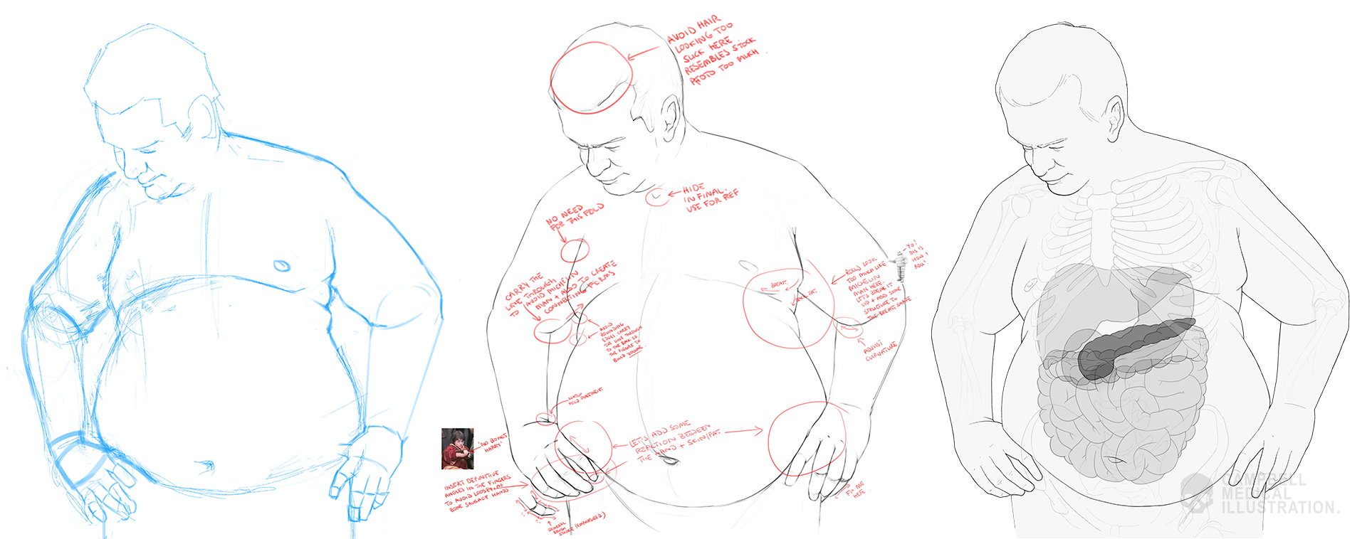 Susanna-Brighouse-obese-male-medical-illustration-work-in-progress.png
