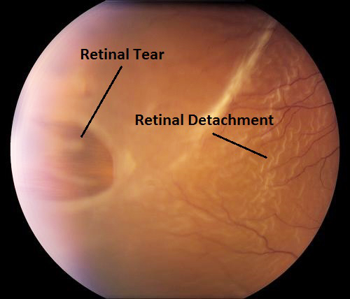 Retinal Detachment.jpg