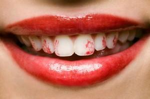 LipstickTeeth.jpg