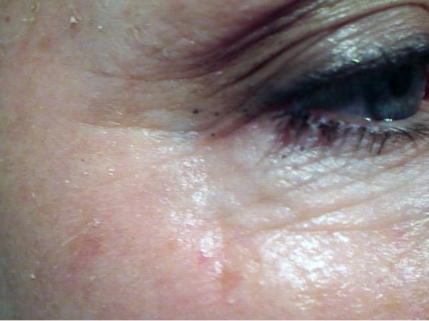 eye after.jpg