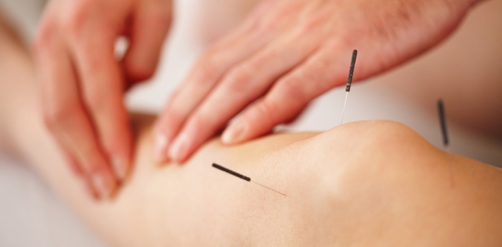Acupuncture_08.jpg
