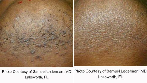 Coolglide Laser Hair Removal Lakes Dermatology