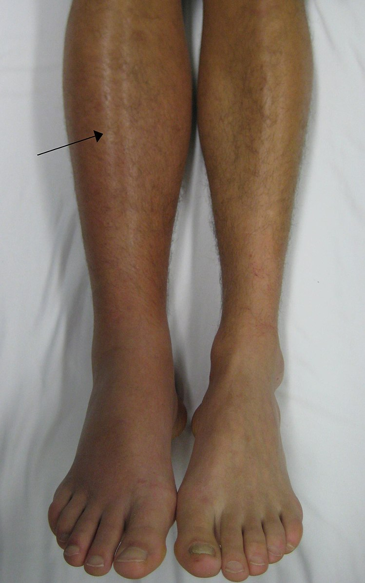 A photo of a DVT patient with a swollen left calf (via Wikimedia).