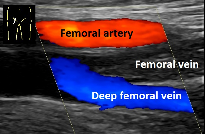 An ultrasound echo imaging will be used to show the location of the DVT located deep in your body.