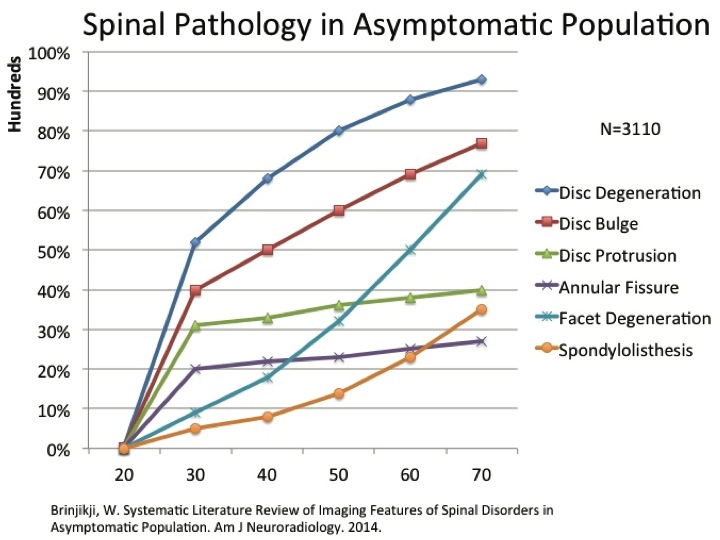 low back pain, MRI findings, asymptomatic people, physical therapy treatments