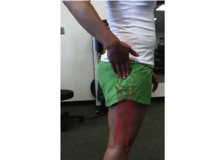 boulder physical therapy lateral hip pain bursitis