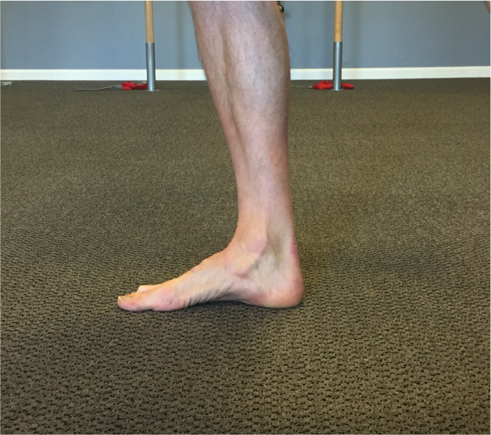short foot exercise-heel pain-mobility-strengthening