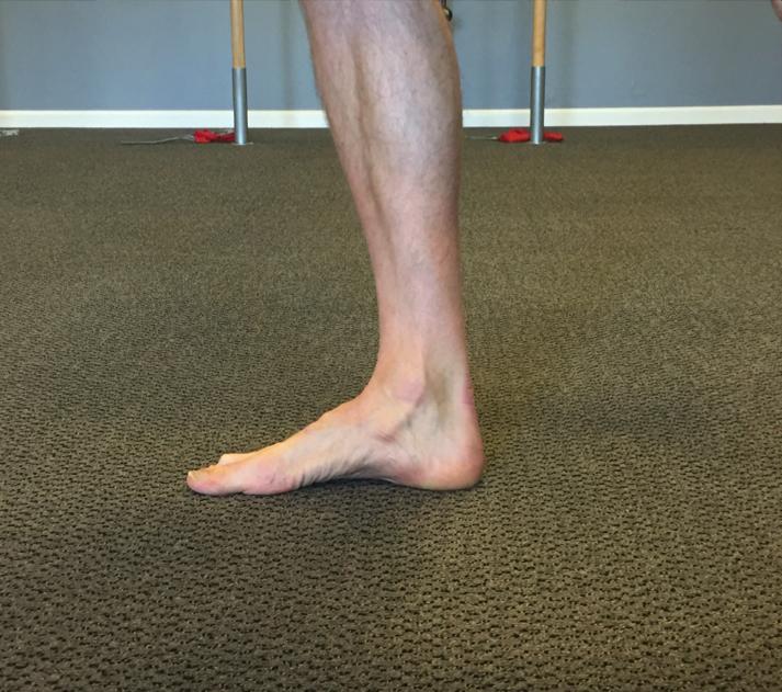 foot strengthening-orthotics-fallen arch-heel pain