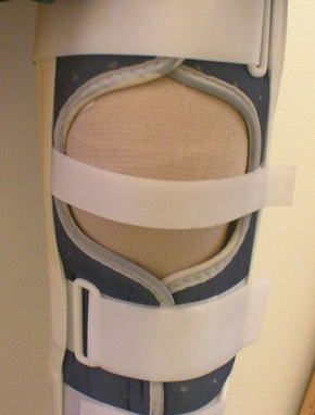 ACL-bracing-post operative-knee injury