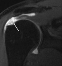 rotator-cuff-tear-injury-treatment