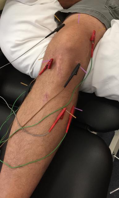 boulder-dry-needling-knee-pain