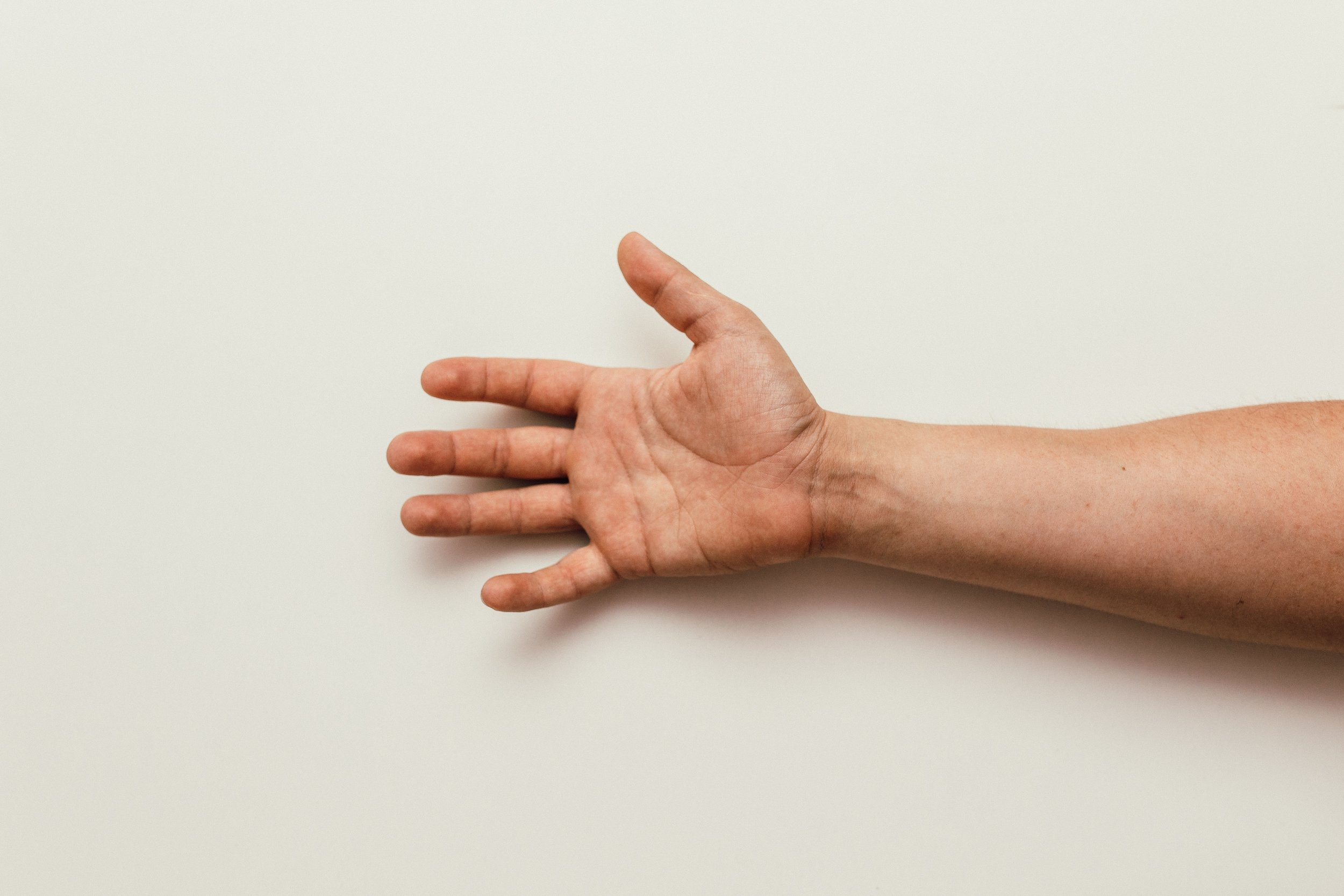 carpal-tunnel-syndrome-treatment-surgery