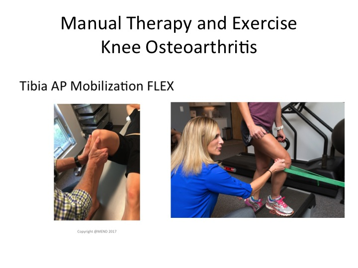 knee-arthritis-treatment-exercise-cost