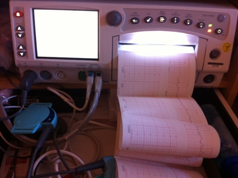 My contraction monitor
