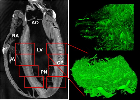 Transmural coronary vascular network imaged by confocal microscopy at 1 micron resolution reveals regionally-varying orientation of the microvessels. macroscopic hemodynamic parameters are derived by volume averaging of theimage data.