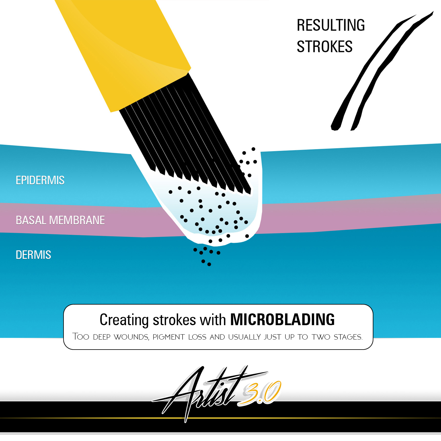 With ordinary microblading very often cuts are made too deep. This results in thicker lines, pigment loss and uneven results.It is harder to control the depth of the blade and most of all most often also the number on needles is smaller. That all results in reduced durability of the end-result. There is a pigment loss in all stages of making strokes as well as the width of the stroke gets larger.