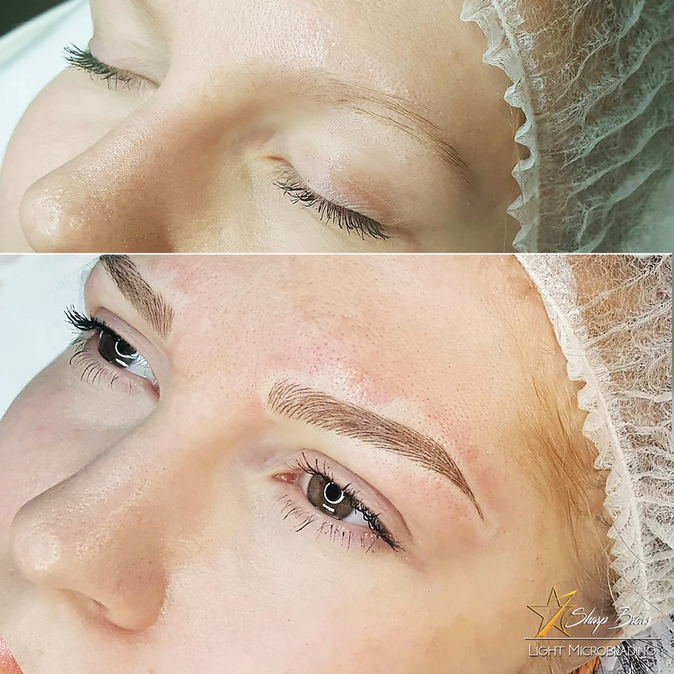 Light microblading. Here is an example of how an already attractive face can be turned even more beautiful with SharpBrows Light microblading.