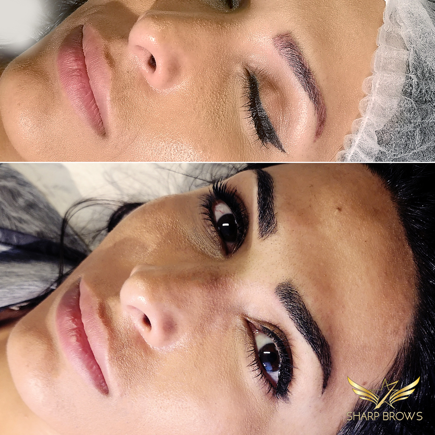 Light microblading - Pretty typical situation where an old pigmentation or tattoo has been turned into a beautiful Light microblading brow.