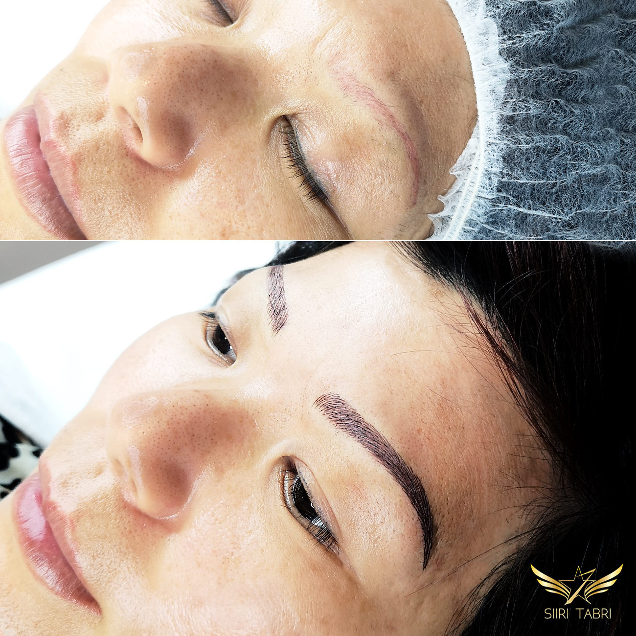 Light microblading. Again, very strange pigmentation turned into natural brow with Light microblading.
