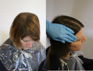 As seen in the regrowth application, part the hair from the centre of the hairline to the centre of the nape and apply colour to either side of the parting.