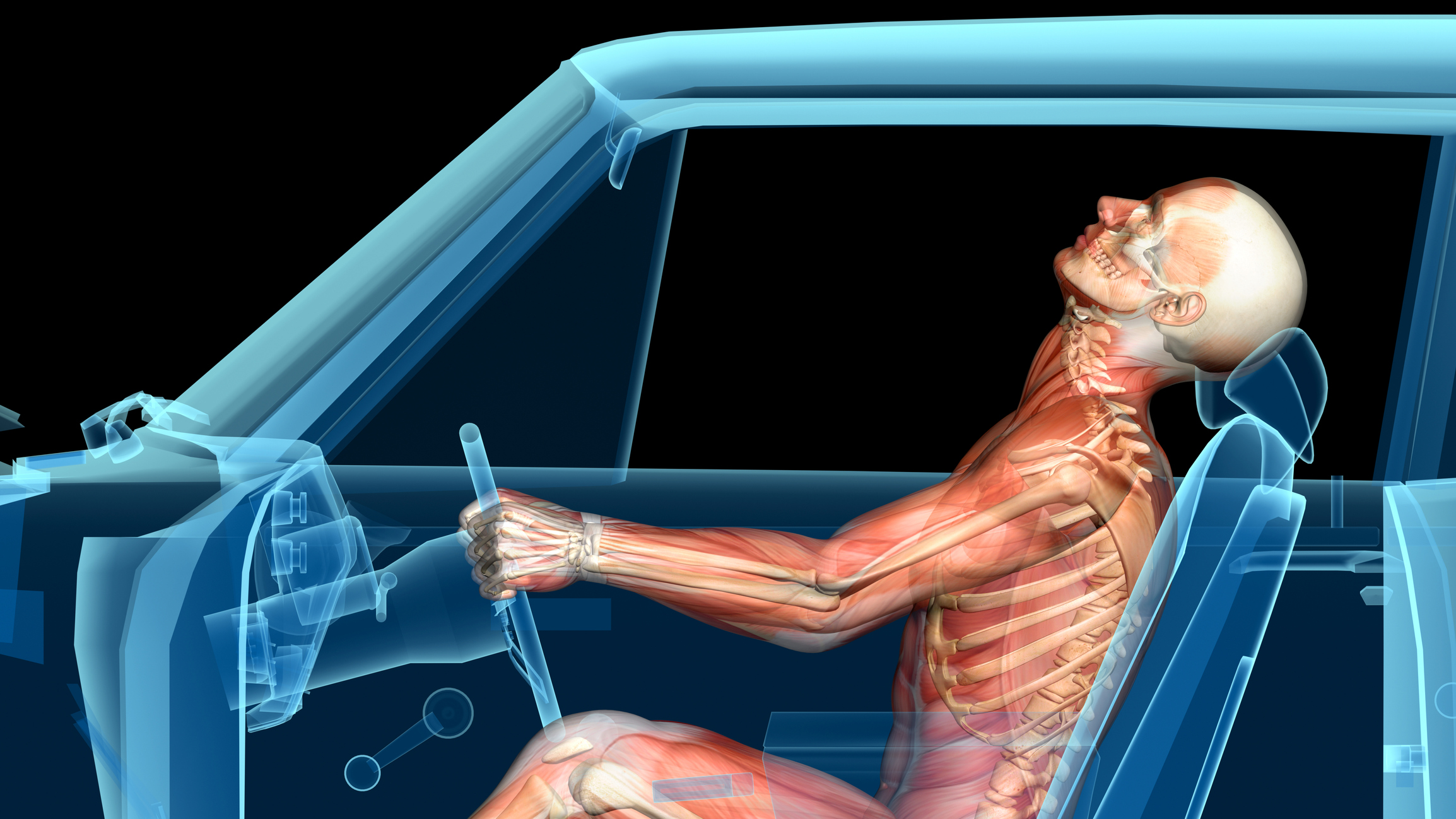 INJURIES FROM ACCIDENTS