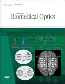 Journal of Biomedical Optics