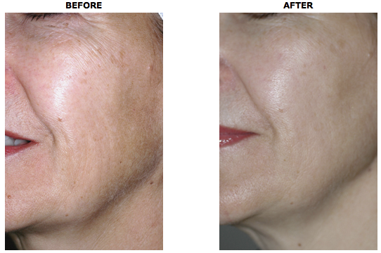 Affirm-Skin-Rejuvenation-System.png