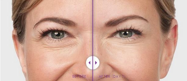 Botox-BeforeAfter3.jpg