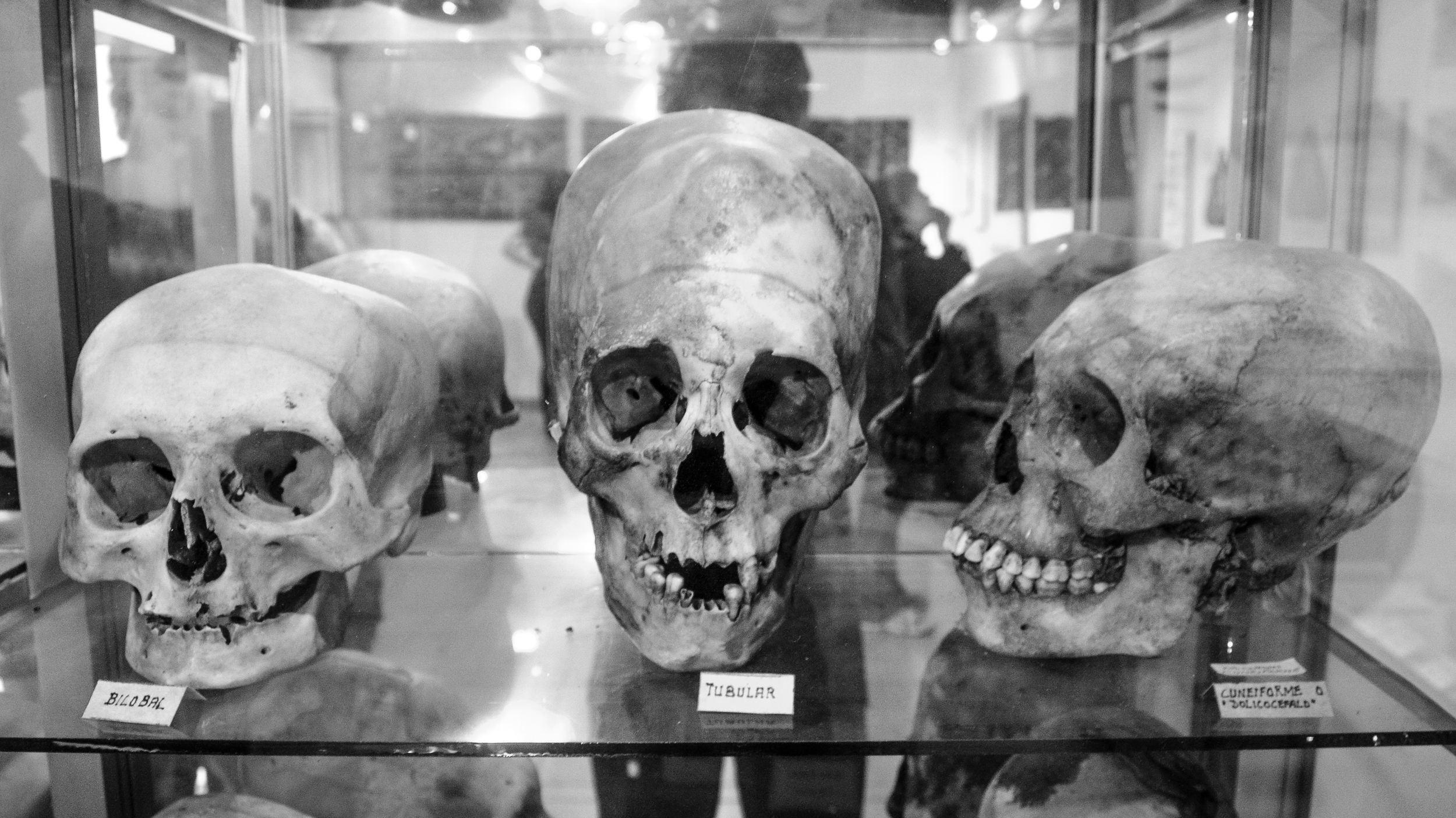 The Paracas culture were believed to treat psychological disorders and physical trauma through bloodletting which required drilling holes in the skull.