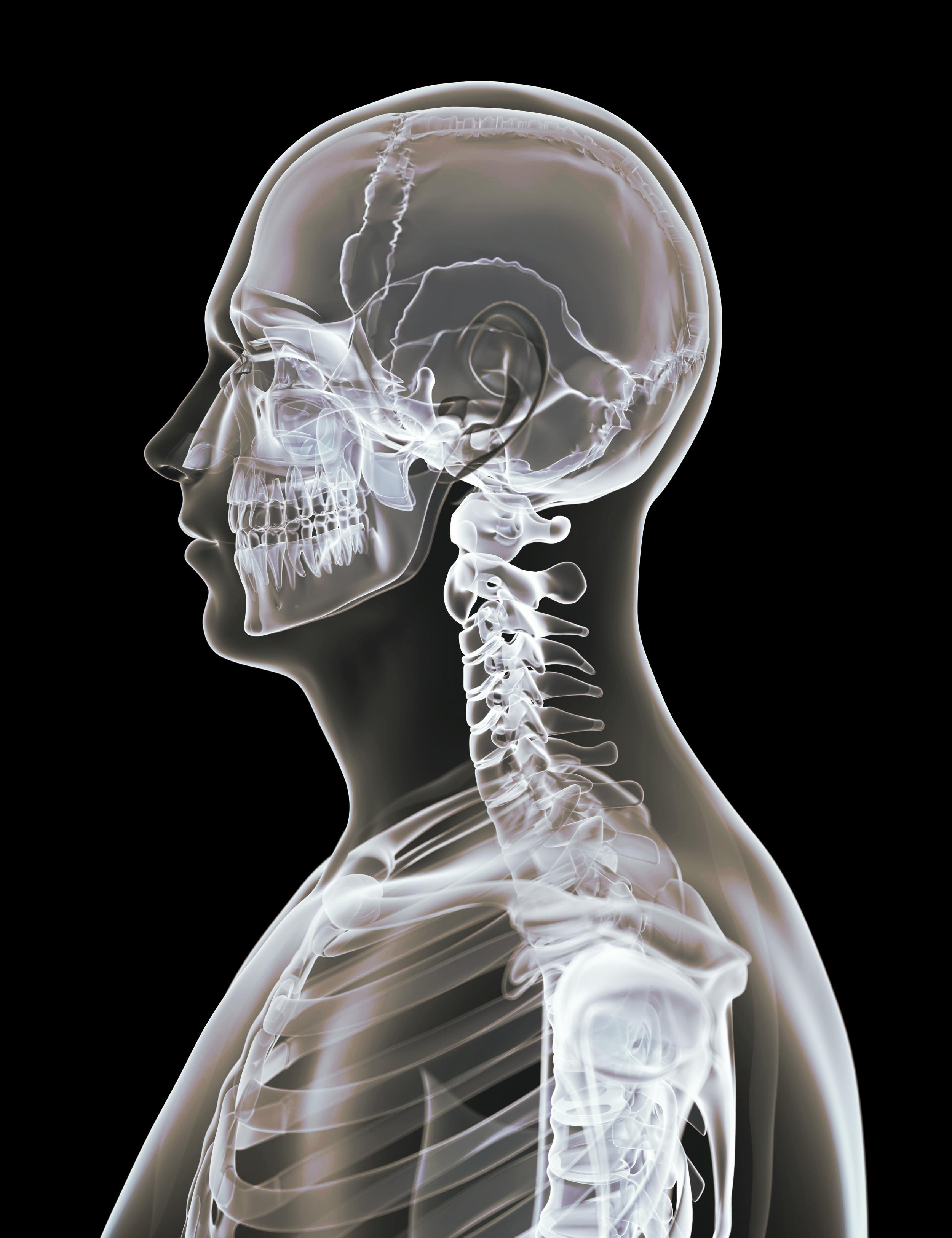 torticolis osteopathe