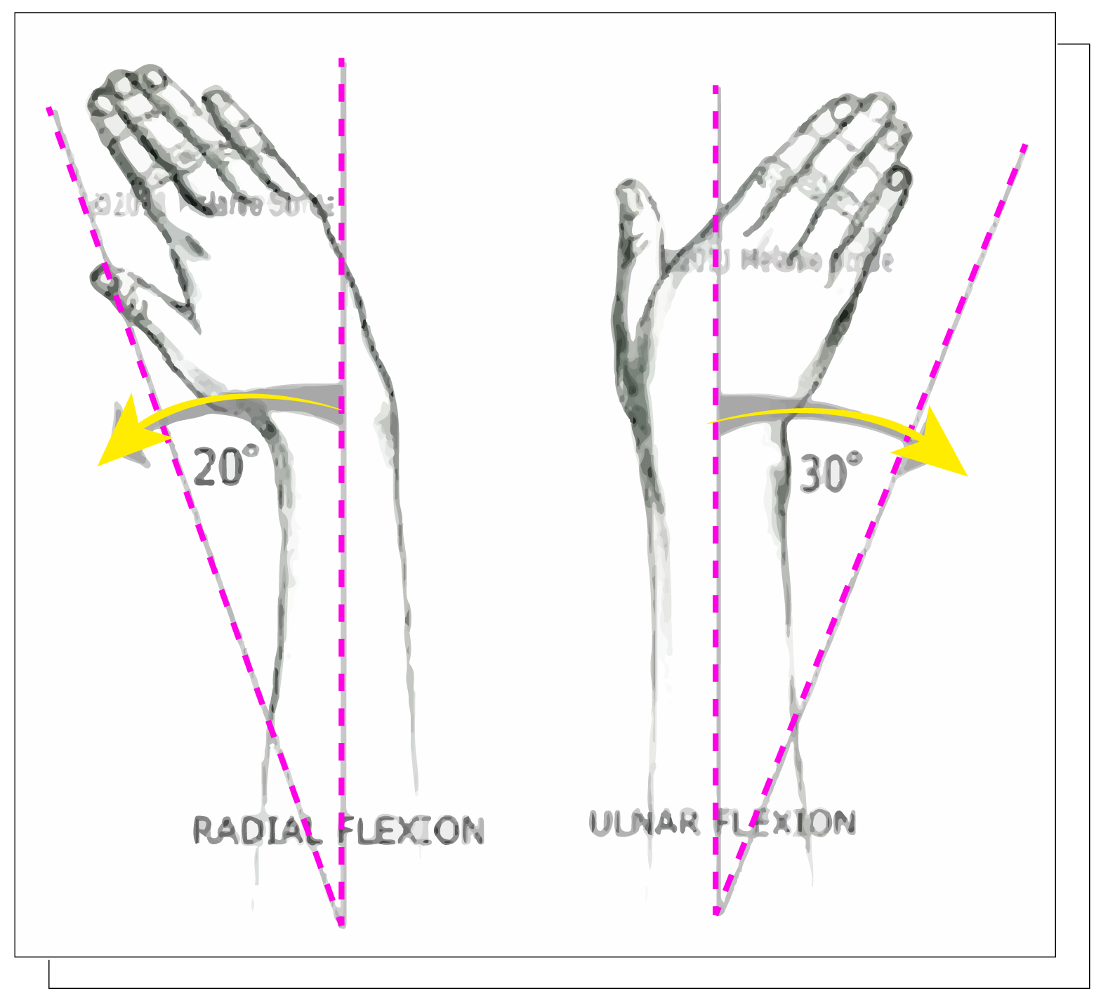 radial-10.jpg