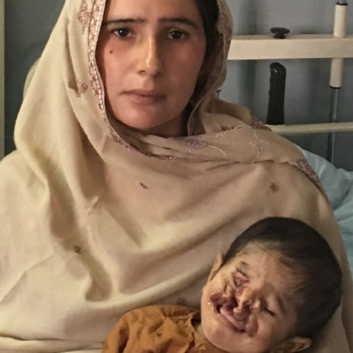Aged 1 year 10 months, Zain and his desperate mother have  at least 3 operations in front of him.