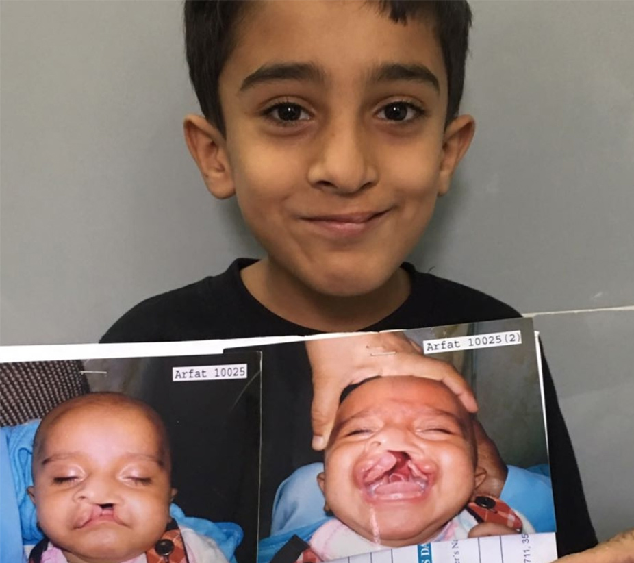 Before and After...  Aftab before his surgery as a baby and today, all grown up and smiley.