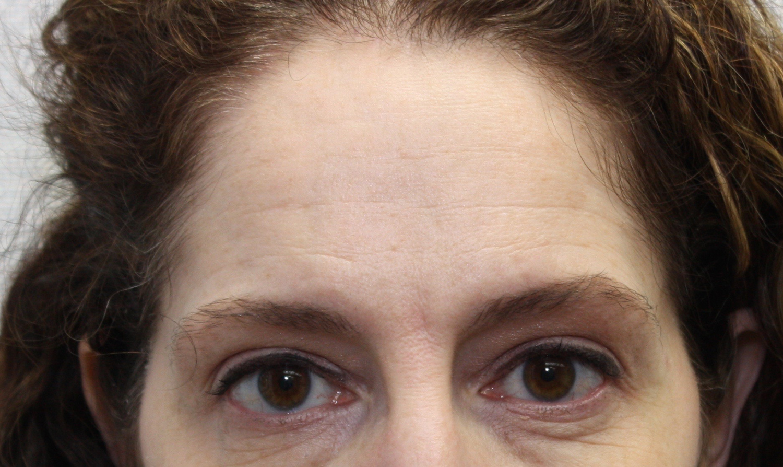 Before Forehead.jpg
