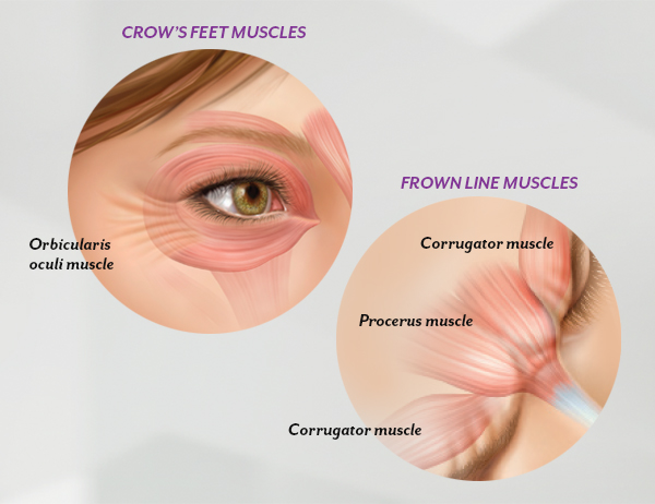 Wrinkles result from a combination of many factors. It's not just about cellular changes that can occur over time, reduction of collagen, or damage caused by free radicals in the sun and the environment. When you frown or concentrate, the muscles between your brows contract, causing your skin to furrow and fold. And when you squint, the muscles around your eyes contract and cause crow's feet.  BOTOX ® Cosmetic works beneath the skin's surface and targets the underlying muscle activity that causes frown lines and crow's feet.