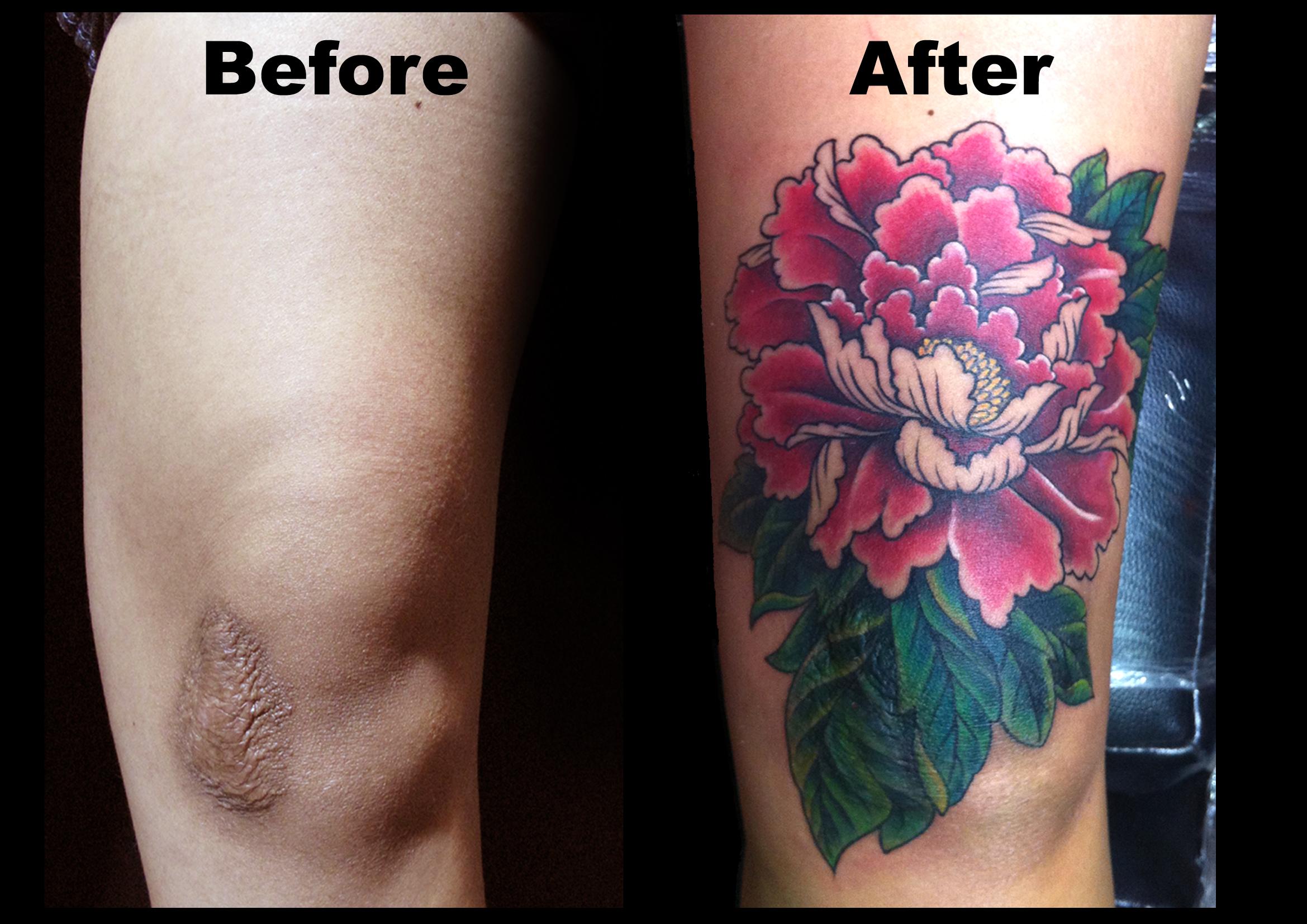 cover scar w flower.jpg
