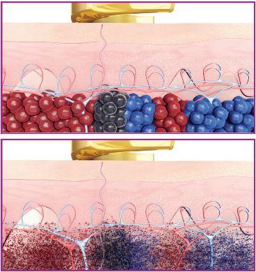 Tatoveringsblekk før og etter behandling med PicoWay