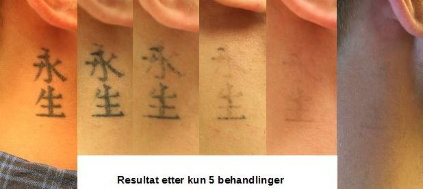 Tattoo before after.JPG