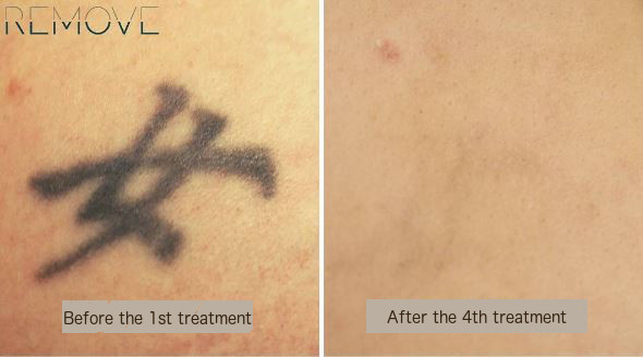 Tattoo gone after just 4 treatments with PicoWay®.