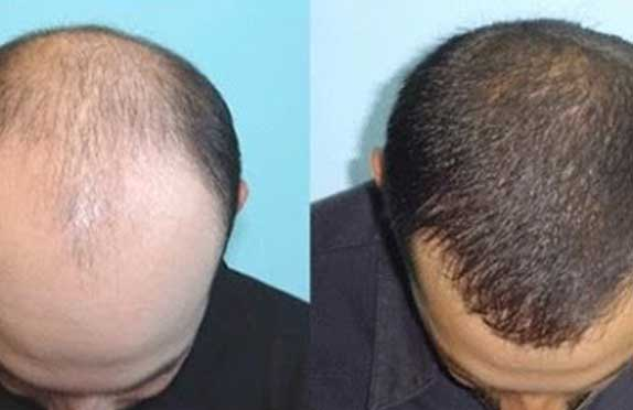 PRP : Before After