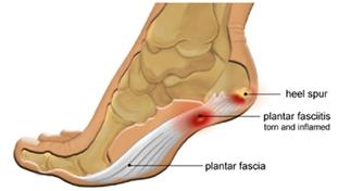 足底筋膜炎 2.jpg