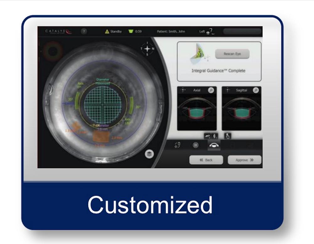 Customized Laser Cataract Surgery