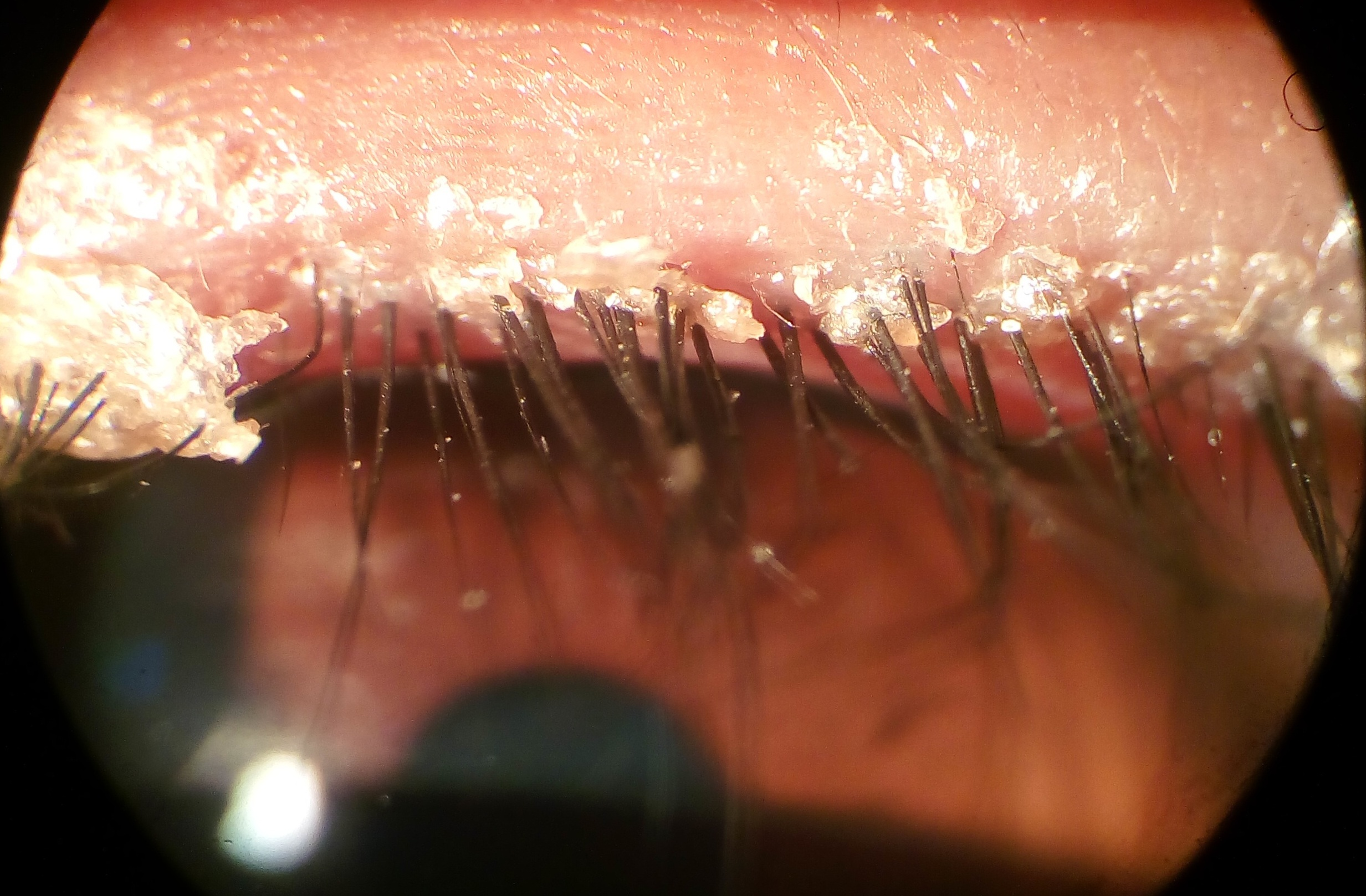 Scaling and bacterial debris at the base of the eyelashes